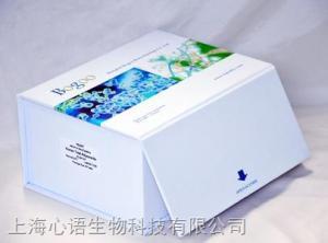 人1型1-磷酸鞘氨醇受体(S1P1)ELISA检测试剂盒