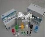 YK-YMLY2 人幽门螺旋杆菌IgM定量检测试剂盒(ELISA)